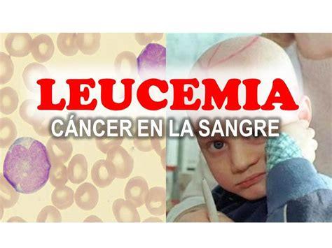 LEUCEMIA   CANCER DE LA SANGRE QUE COMIENZA EN LA MÉDULA ...
