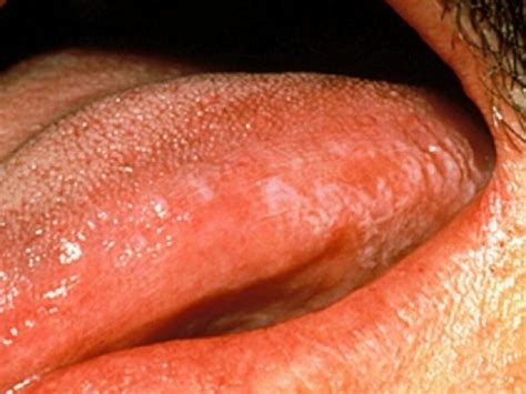 Leukoplakia, hairy; Oral Hairy Leukoplakia