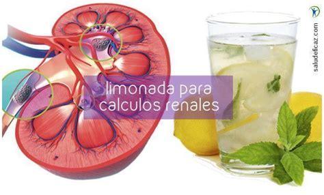 limonada para los calculos renales   Salud Eficaz