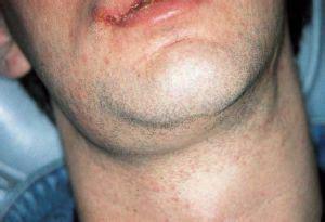 Linfadenitis submandibular: causas de inflamación de los ...