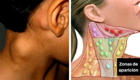 Linfoma de hodgkin: qué es, síntomas y causas   e Consejos