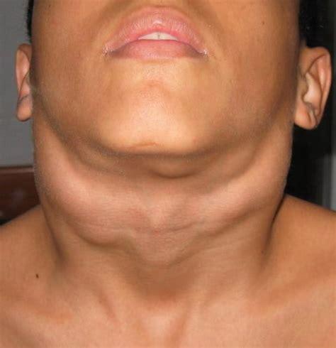 Linfoma en el cuello: ¿qué es? Causas, síntomas ...