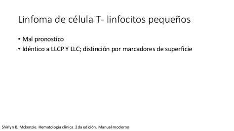 Linfoma linfocítico no hodking
