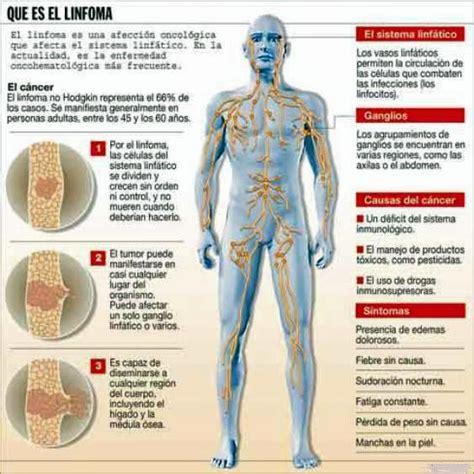 Linfoma no Hodgkin   Información médica en Ferato ...