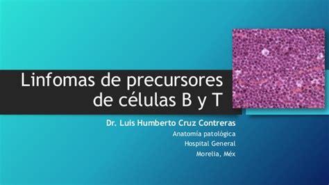 Linfomas de precursores de células B y T  Linfoma ...