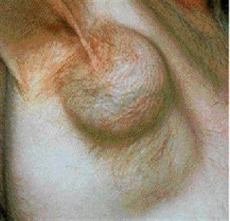Linfomas y otras enfermedades en el Sistema Linfático ...