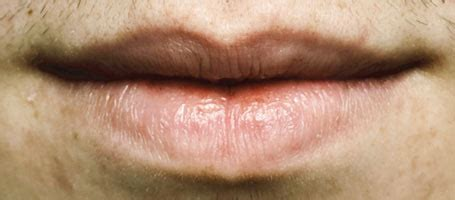 Lip Cancer: Not Uncommon, Often Overlooked   ChopSaver