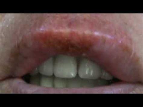Lip Cancer Radiation Treatment   YouTube
