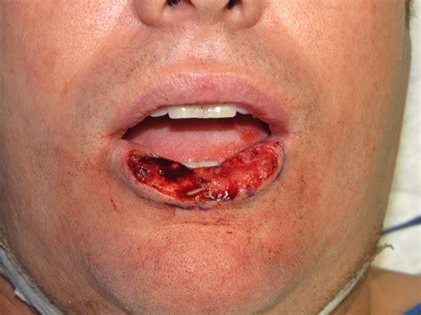lip cancer – KillTheCan.org
