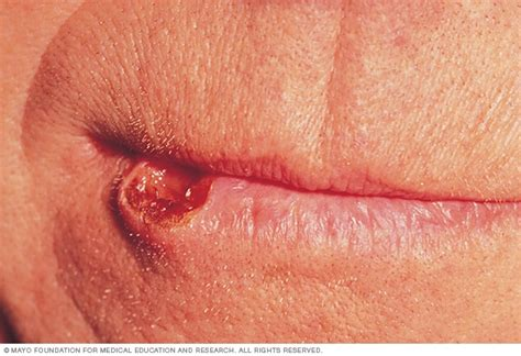 Lip cancer   Symptoms and causes   Mayo Clinic