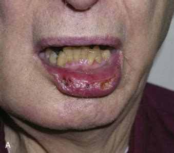Lip Cancer—Ablative and Reconstructive Surgery | Pocket ...