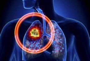 Lo que debes saber sobre el cáncer de pulmón   EROSKI CONSUMER