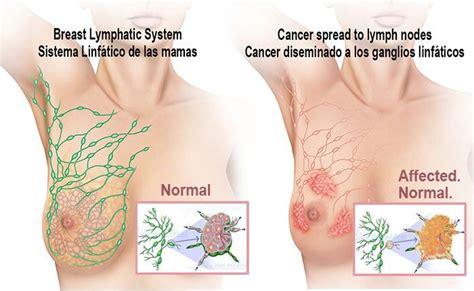 lóbulos mamarios Archivos   %%Ilusmedical, ilustraciones ...