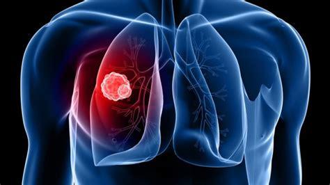 Los 3 tipos de tumores: benignos, premalignos y malignos