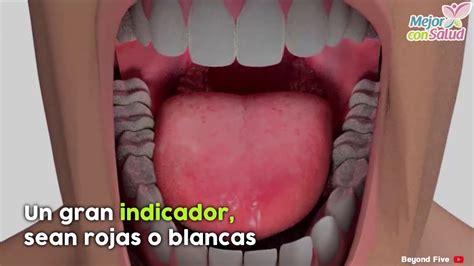 Los 5 primeros síntomas de cáncer de lengua   Mejor con ...