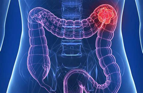 Los casos de cáncer de páncreas y el de colon crecieron un ...