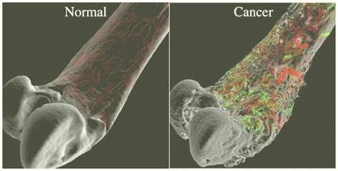 Los Huesos: ¿Qué son? Anatomía, funciones, tipos ...