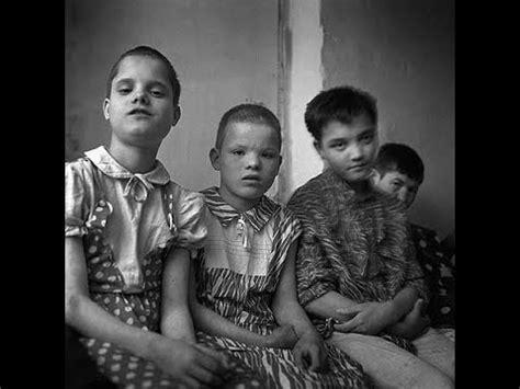 Los niños afectados de Chernobyl.   YouTube