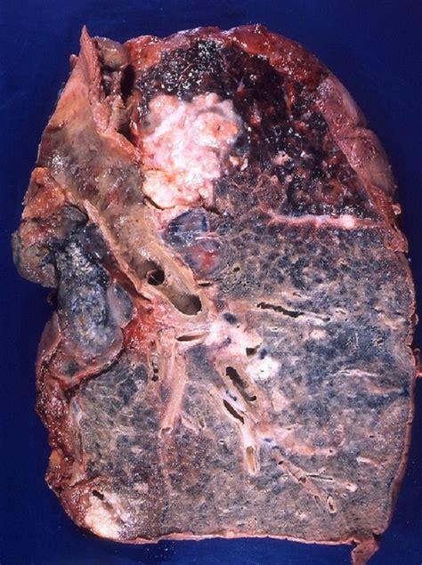 Los síntomas del cáncer de pulmón   Demedicina.com