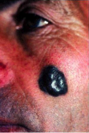 Los tumores cutáneos faciales | Medicina Integral