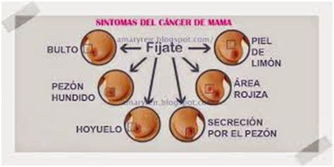 Luchemos Juntos Contra El Cáncer De Mama: SIGNOS Y ...