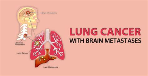 Lung Cancer Brain Metastases   Causes, Symptoms, Life ...