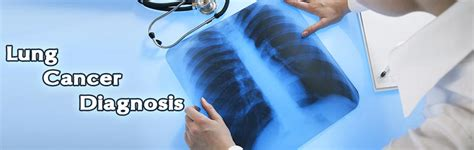Lung Cancer Diagnosis   Treatment   Screening   Chemotherapy