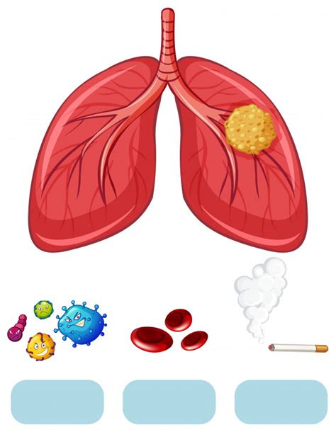 Lung cancer diagram with virus and cigarette Vector ...