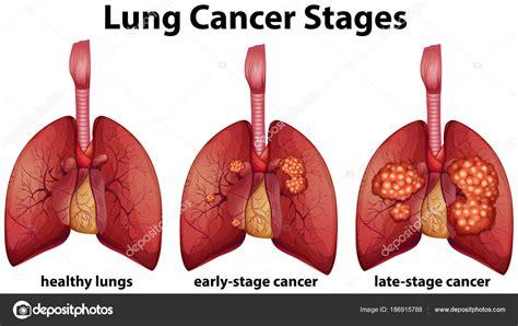 #Lung Cancer « maismaismedicina