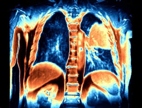 Lung Cancer Patients Live Longer With Immune Therapy   The ...
