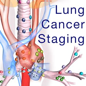 Lung Cancer Staging Table   Android Apps on Google Play