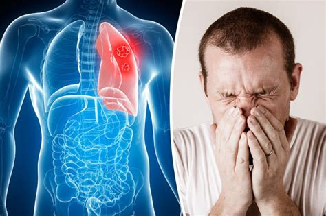 Lung cancer symptoms and prevention: Seven signs of a ...