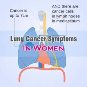 Lung Cancer Symptoms In Women That Are Commonly Found