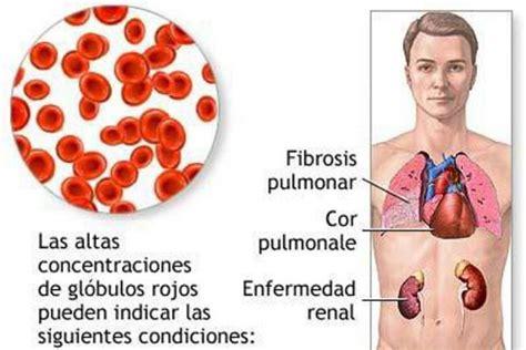 LUPUS Y AMIGOS: Fibrosis pulmonar, incurable, pero se ...