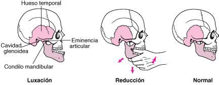 Luxación de la mandíbula   Trastornos bucales y dentales ...