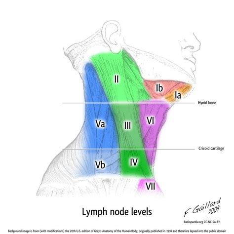 Lymph node levels | Radiology Case | Radiopaedia.org | MD ...