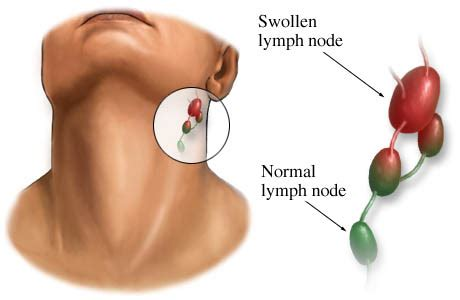 Lymph Nodes Behind the Ear: Explained | Journal of Natural ...