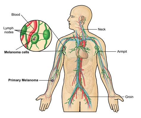 Lymph Nodes   In Body, Locations, Functions, Shape ...