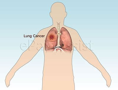 Malignant Cancer Pain: Everything You Need to Know!