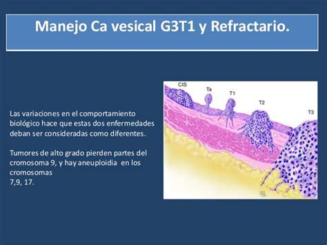 Manejo Ca Vesical G3T1 y Refractario