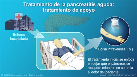 Manejo y tratamiento de la pancreatitis aguda ...