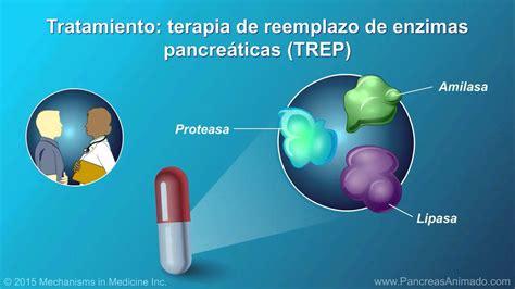 Manejo y tratamiento de la pancreatitis crónica   YouTube