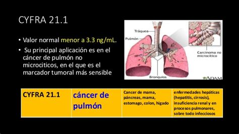 Marcadores tumorales AZR