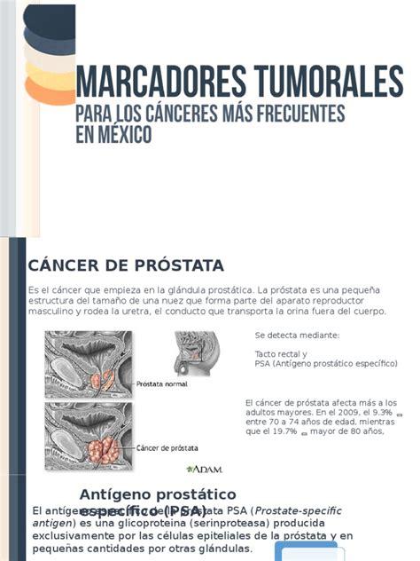 Marcadores tumorales | Cáncer de próstata | Cáncer de mama