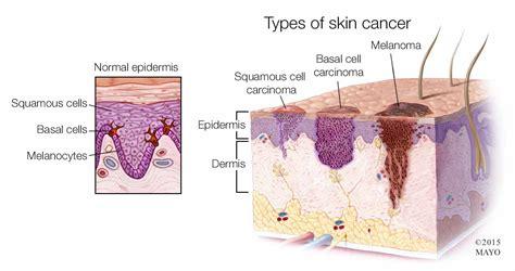 Mayo Clinic Minute: 3 types of skin cancer – Mayo Clinic ...