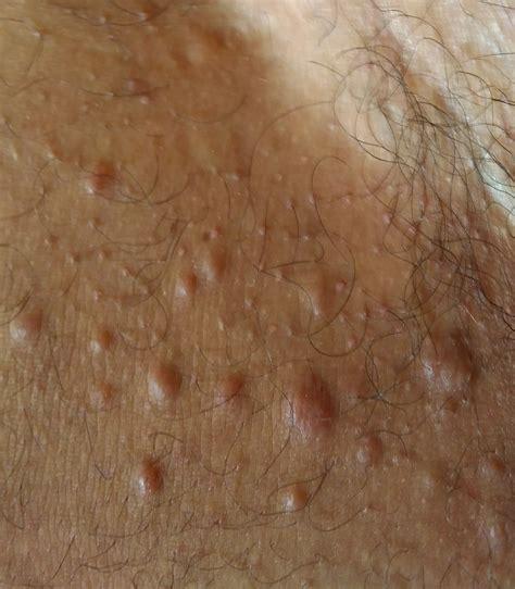 Me salieron unos granos en la entrepierna. – dermatologo.net