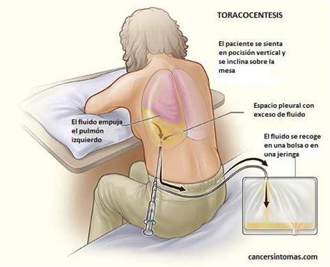 MEDICINA GENERAL   DR. DANIEL MENDOZA : TORACOCENTESIS ...