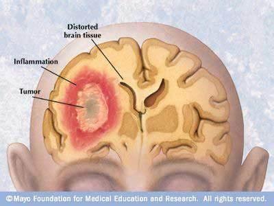 medlinksite: Brain Tumor