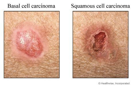 Melanoma vs. non melanoma skin cancers | Sunspots Melanoma ...