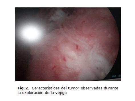 Metástasis cutánea única por carcinoma urotelial de vejiga